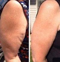 before-after-cellmaxa