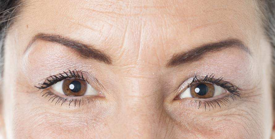 Causes of Skin Wrinkling