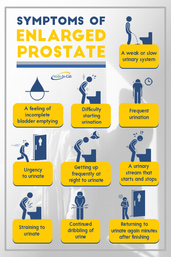 infographic-prostate