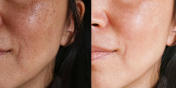 Juvabrite Really Lighten the Skin