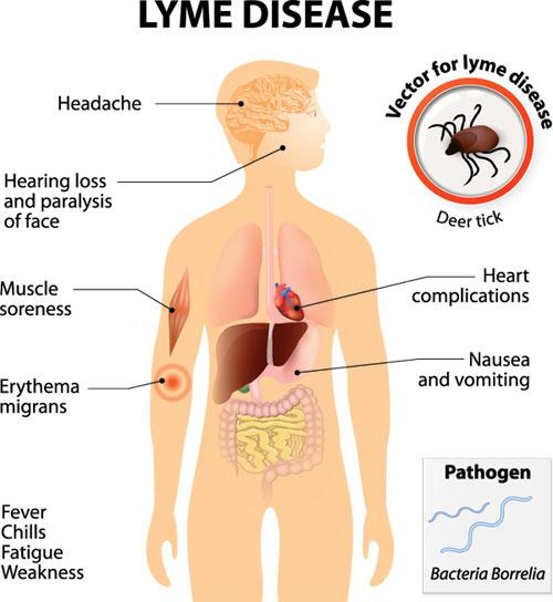 lyme disease Info