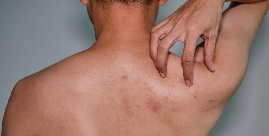 Prevent Back Acne