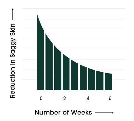 Revivatone Graph3